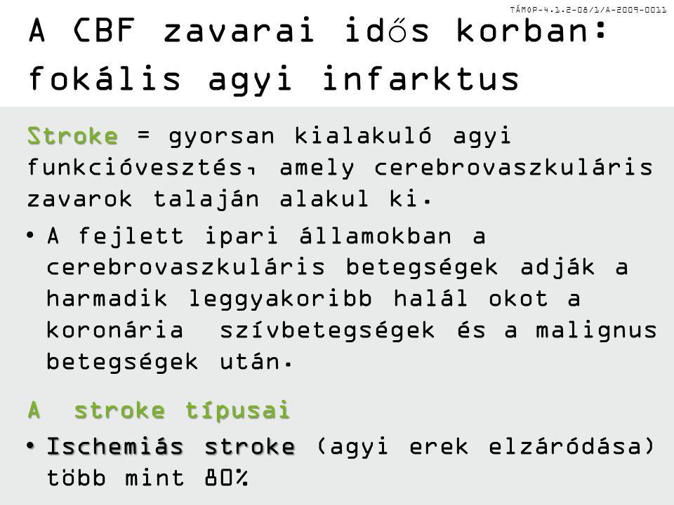 TÁMOP-4.1.2-08/1/A-2009-0011 A CBF zavarai idős korban: fokális agyi infarktus Stroke Stroke = gyorsan kialakuló agyi funkcióvesztés, amely cerebrovas