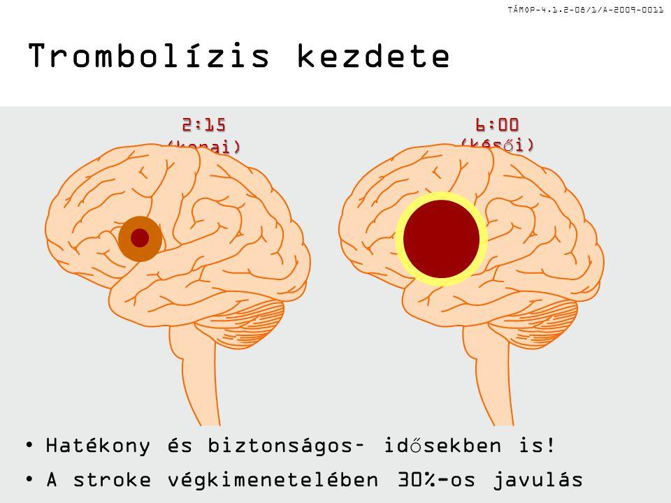 TÁMOP-4.1.2-08/1/A-2009-0011 2:15 (korai) 6:00 (késői) Trombolízis kezdete •Hatékony és biztonságos– idősekben is! •A stroke végkimenetelében 30%-os j