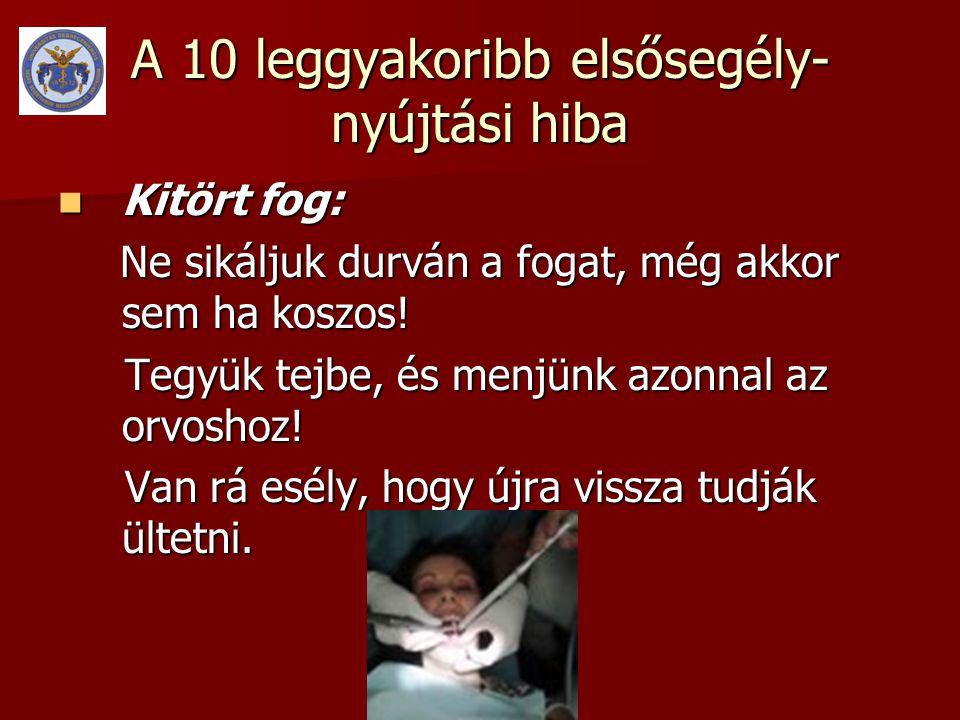 A 10 leggyakoribb elsősegély- nyújtási hiba  Kitört fog: Ne sikáljuk durván a fogat, még akkor sem ha koszos.