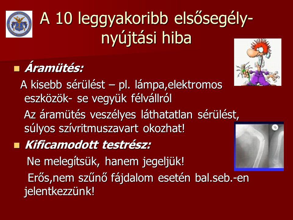A 10 leggyakoribb elsősegély- nyújtási hiba  Áramütés: A kisebb sérülést – pl. lámpa,elektromos eszközök- se vegyük félvállról A kisebb sérülést – pl