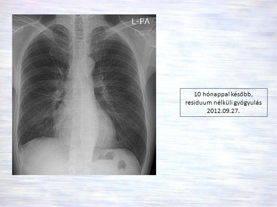 10 hónappal később, residuum nélküli gyógyulás 2012.09.27.
