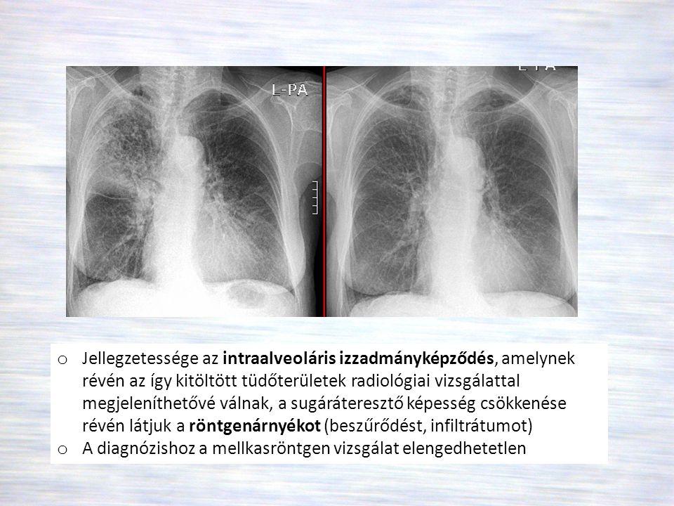 """A pneumoniák klinikuma • Láz, hidegrázás : a gyermek- és időskori pneumoniáknál a kiszáradás, az elektrolit háztartás felbomlása jelent veszélyt • Fejfájás, hányinger, izomfájdalmak, rossz közérzet • Tachypnoe, dyspnoe (oka a hypoxia, láz, mély légvételkor mellkasi fájdalom) • Tachycardia • Mellkasi fájdalom: """"oldalszegezés , alsólebenyi lokalizáció esetén a fájdalom appendicitist, cholecystitist utánozhat • Köhögés • Purulens köpet (ürítését a bőséges folyadékbevitel segíti) • Röngenfilmen infiltrátum"""