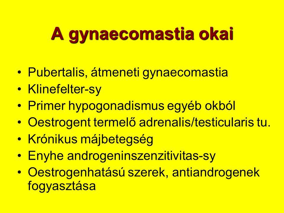 A gynaecomastia okai •Pubertalis, átmeneti gynaecomastia •Klinefelter-sy •Primer hypogonadismus egyéb okból •Oestrogent termelő adrenalis/testicularis