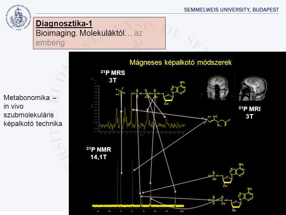 Diagnosztika-1 Bioimaging. Molekuláktól… az emberig Metabonomika – in vivo szubmolekuláris képalkotó technika Mágneses képalkotó módszerek 31 P MRS 3T