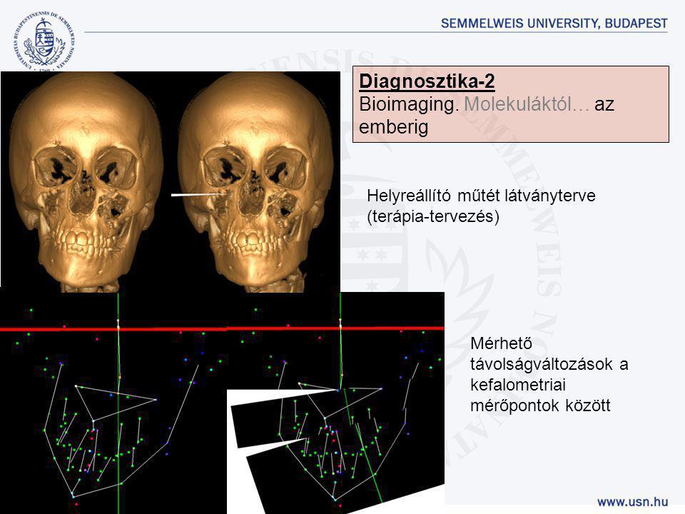 Helyreállító műtét látványterve (terápia-tervezés) Mérhető távolságváltozások a kefalometriai mérőpontok között Diagnosztika-2 Bioimaging. Molekuláktó