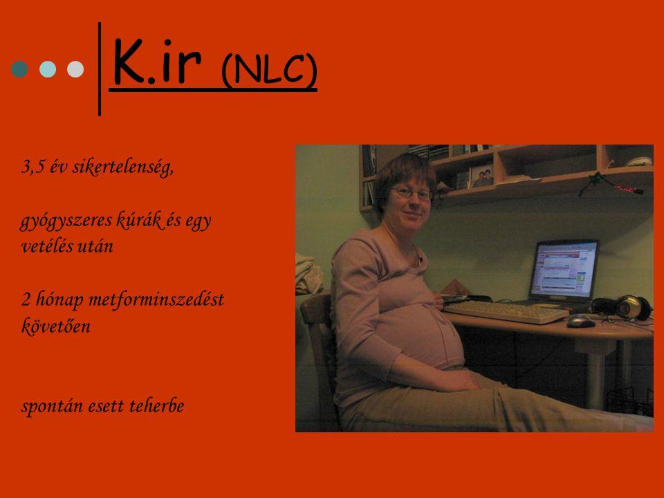 K.ir (NLC) 3,5 év sikertelenség, gyógyszeres kúrák és egy vetélés után 2 hónap metforminszedést követően spontán esett teherbe