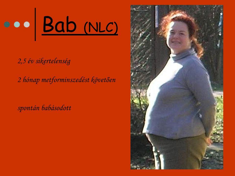 2,5 év sikertelenség 2 hónap metforminszedést követően spontán babásodott Bab (NLC)