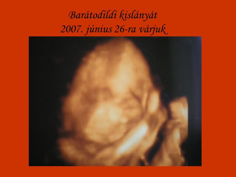 Barátodildi kislányát 2007. június 26-ra várjuk