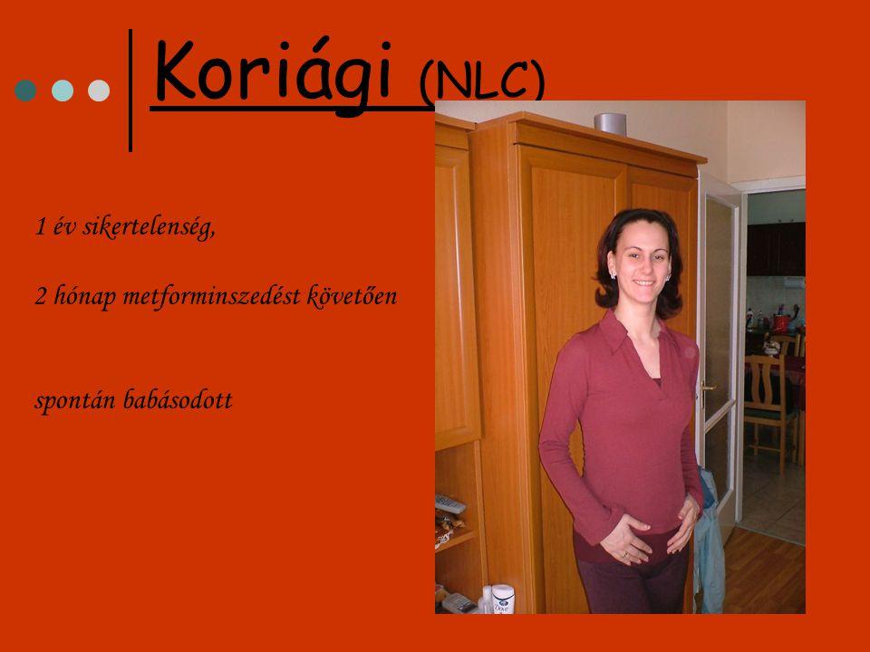 1 év sikertelenség, 2 hónap metforminszedést követően spontán babásodott Koriági (NLC)