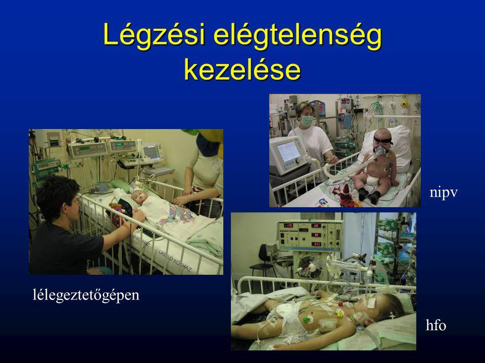 Légzési elégtelenség kezelése lélegeztetőgépen hfo nipv