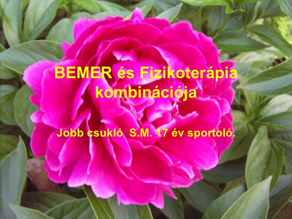 BEMER és Fizikoterápia kombinációja Jobb csukló S.M. 17 év sportoló.