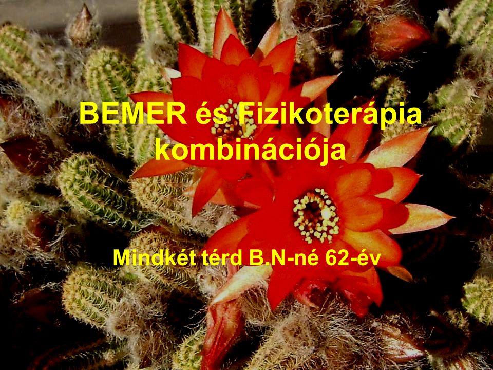 BEMER és Fizikoterápia kombinációja Mindkét térd B.N-né 62-év