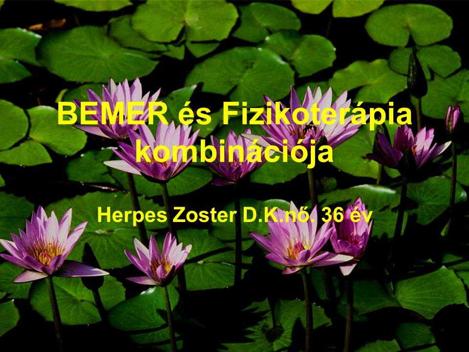 BEMER és Fizikoterápia kombinációja Herpes Zoster D.K.nő. 36 év