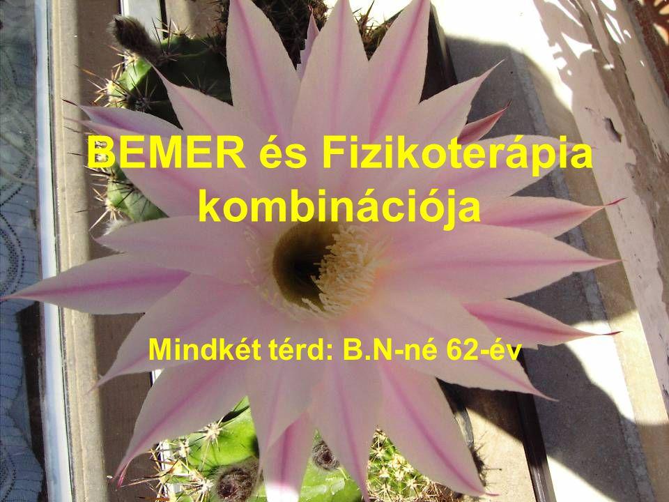 BEMER és Fizikoterápia kombinációja Mindkét térd: B.N-né 62-év