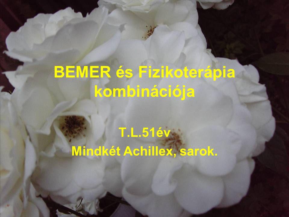BEMER és Fizikoterápia kombinációja T.L.51év Mindkét Achillex, sarok.