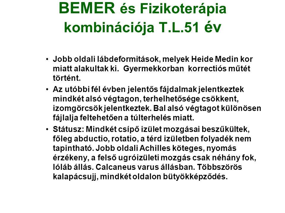 BEMER és Fizikoterápia kombinációja T.L.51 év •Jobb oldali lábdeformitások, melyek Heide Medin kor miatt alakultak ki.