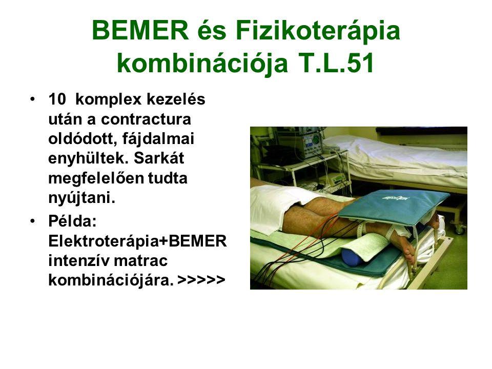 BEMER és Fizikoterápia kombinációja T.L.51 •10 komplex kezelés után a contractura oldódott, fájdalmai enyhültek.