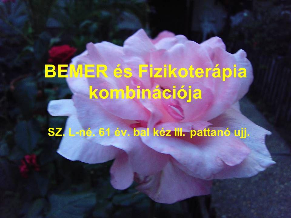 BEMER és Fizikoterápia kombinációja SZ. L-né. 61 év. bal kéz III. pattanó ujj.