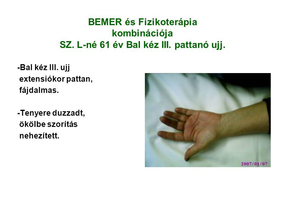 BEMER és Fizikoterápia kombinációja SZ.L-né 61 év Bal kéz III.