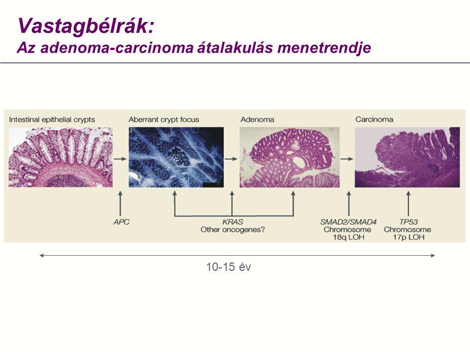 Vastagbélrák: Az adenoma-carcinoma átalakulás menetrendje 10-15 év
