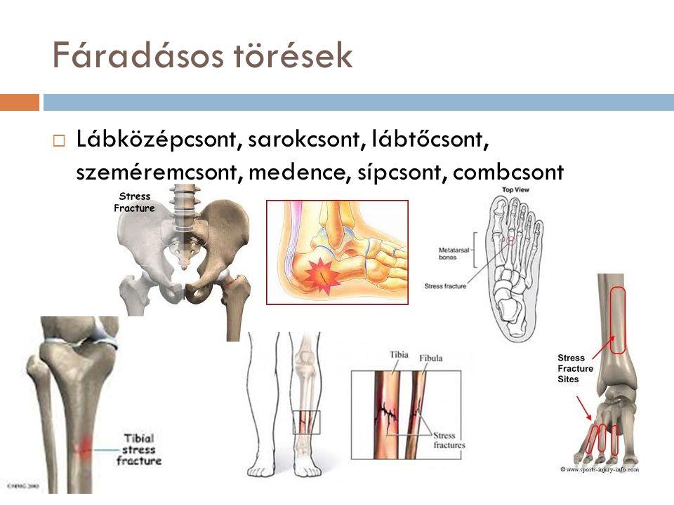 Fáradásos törések  Lábközépcsont, sarokcsont, lábtőcsont, szeméremcsont, medence, sípcsont, combcsont