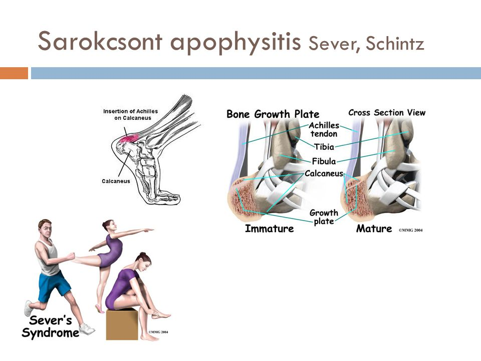 Sarokcsont apophysitis Sever, Schintz