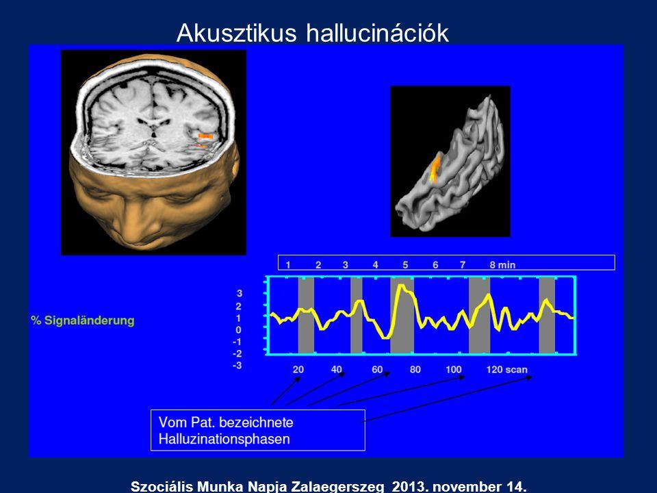 Szociális Munka Napja Zalaegerszeg 2013. november 14. Akusztikus hallucinációk