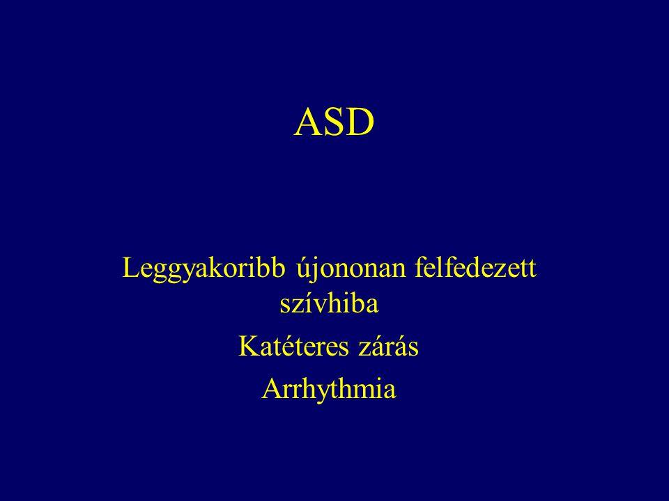 ASD Leggyakoribb újononan felfedezett szívhiba Katéteres zárás Arrhythmia