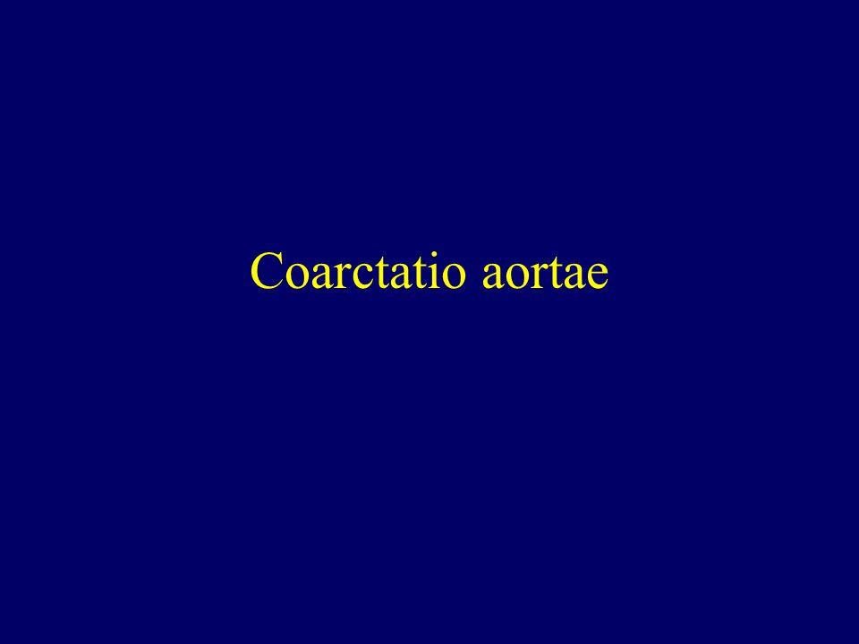 Coarctatio aortae