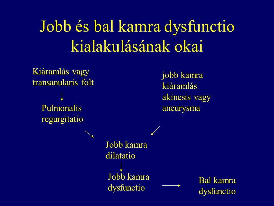 Jobb és bal kamra dysfunctio kialakulásának okai Kiáramlás vagy transanularis folt Pulmonalis regurgitatio Jobb kamra dilatatio Jobb kamra dysfunctio