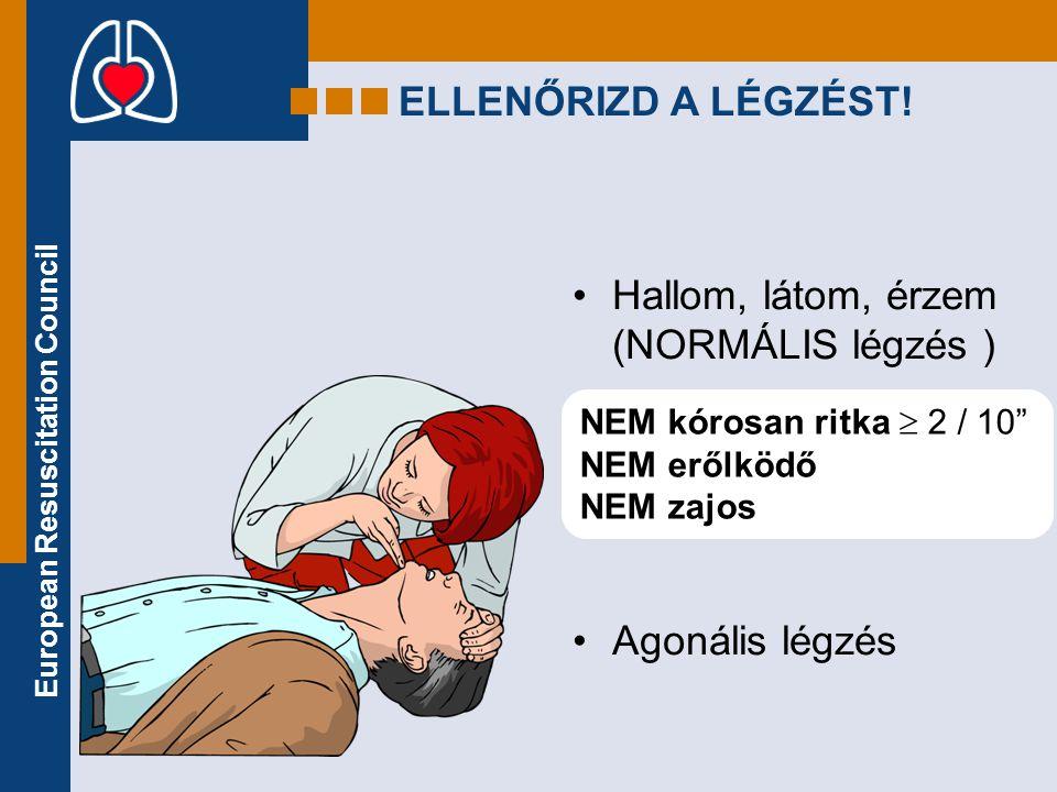 """European Resuscitation Council ELLENŐRIZD A LÉGZÉST! •Hallom, látom, érzem (NORMÁLIS légzés ) •Agonális légzés NEM kórosan ritka  2 / 10"""" NEM erőlköd"""
