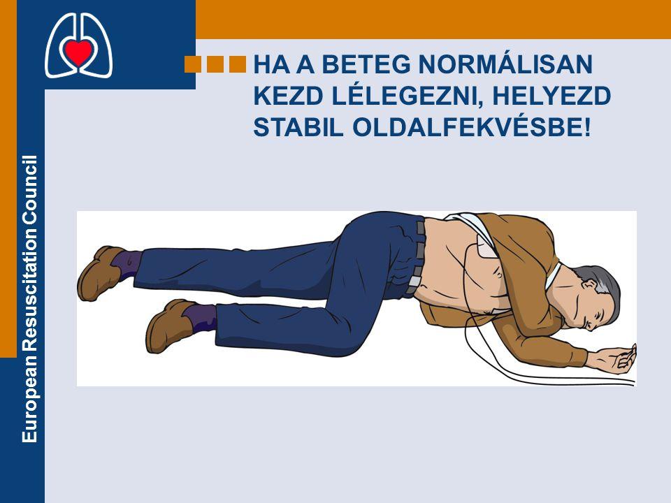 European Resuscitation Council HA A BETEG NORMÁLISAN KEZD LÉLEGEZNI, HELYEZD STABIL OLDALFEKVÉSBE!