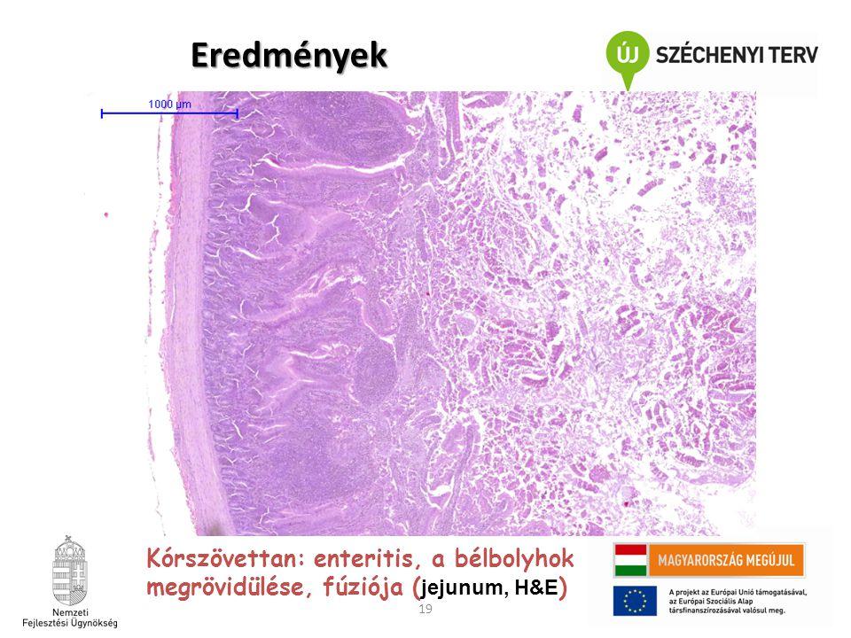 19 Kórszövettan: enteritis, a bélbolyhok megrövidülése, fúziója ( jejunum, H&E ) Eredmények