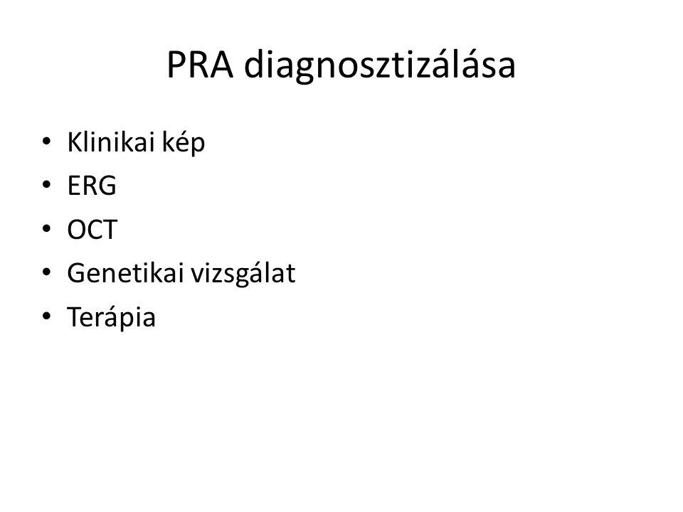 PRA diagnosztizálása • Klinikai kép • ERG • OCT • Genetikai vizsgálat • Terápia