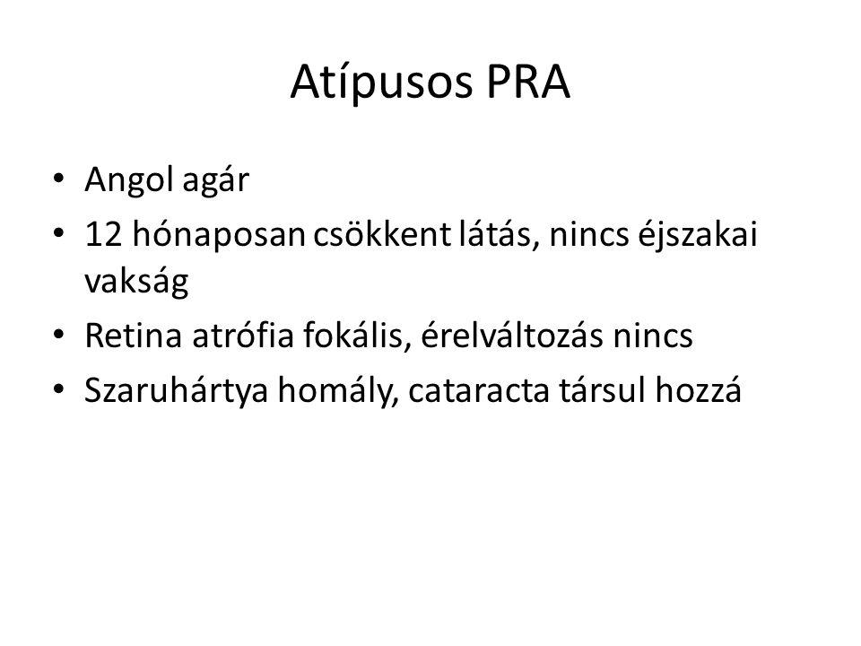 Atípusos PRA • Angol agár • 12 hónaposan csökkent látás, nincs éjszakai vakság • Retina atrófia fokális, érelváltozás nincs • Szaruhártya homály, cata
