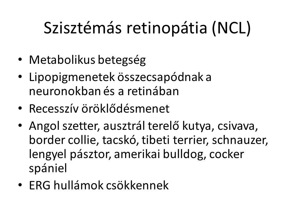 Szisztémás retinopátia (NCL) • Metabolikus betegség • Lipopigmenetek összecsapódnak a neuronokban és a retinában • Recesszív öröklődésmenet • Angol sz