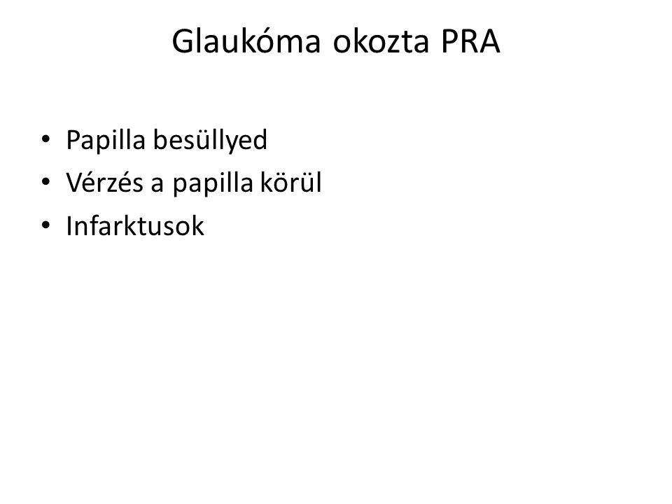 Glaukóma okozta PRA • Papilla besüllyed • Vérzés a papilla körül • Infarktusok