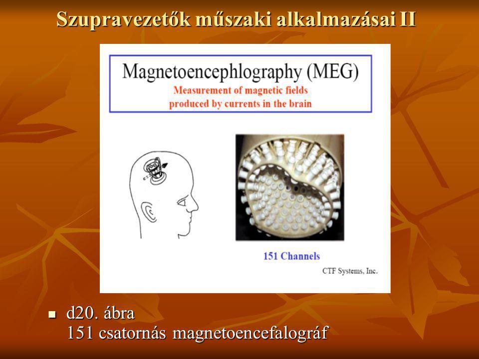 Szupravezetők műszaki alkalmazásai II  d20. ábra 151 csatornás magnetoencefalográf