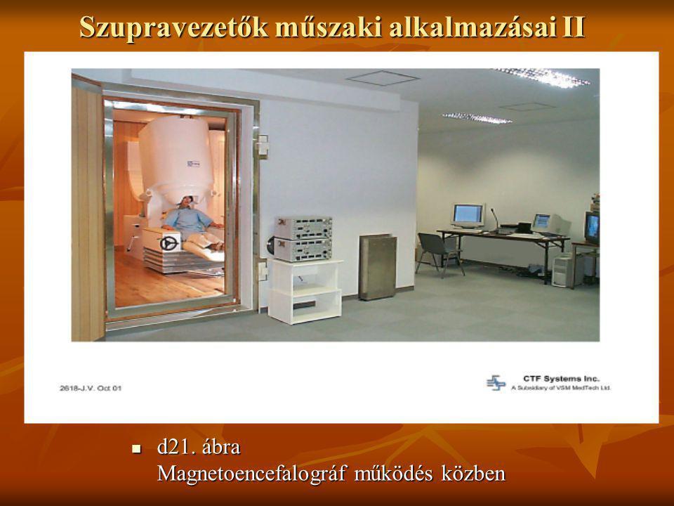 Szupravezetők műszaki alkalmazásai II  d21. ábra Magnetoencefalográf működés közben