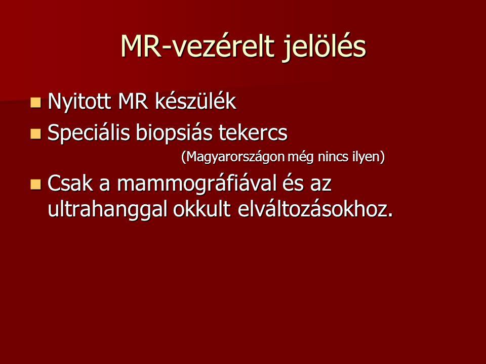 MR-vezérelt jelölés  Nyitott MR készülék  Speciális biopsiás tekercs (Magyarországon még nincs ilyen) (Magyarországon még nincs ilyen)  Csak a mamm