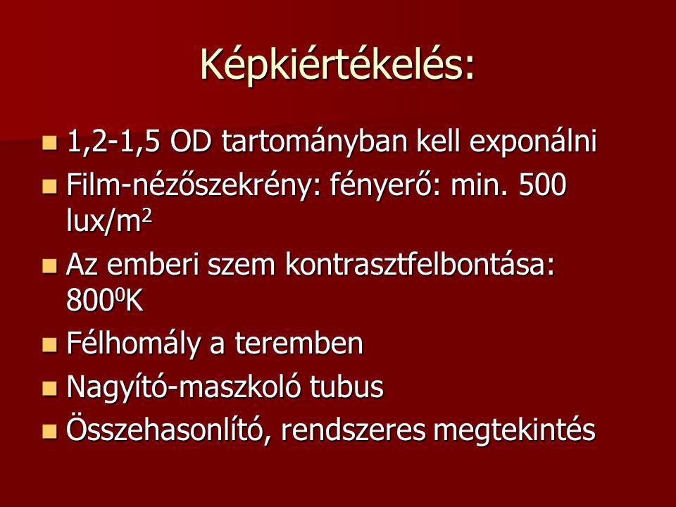 Képkiértékelés:  1,2-1,5 OD tartományban kell exponálni  Film-nézőszekrény: fényerő: min. 500 lux/m 2  Az emberi szem kontrasztfelbontása: 800 0 K