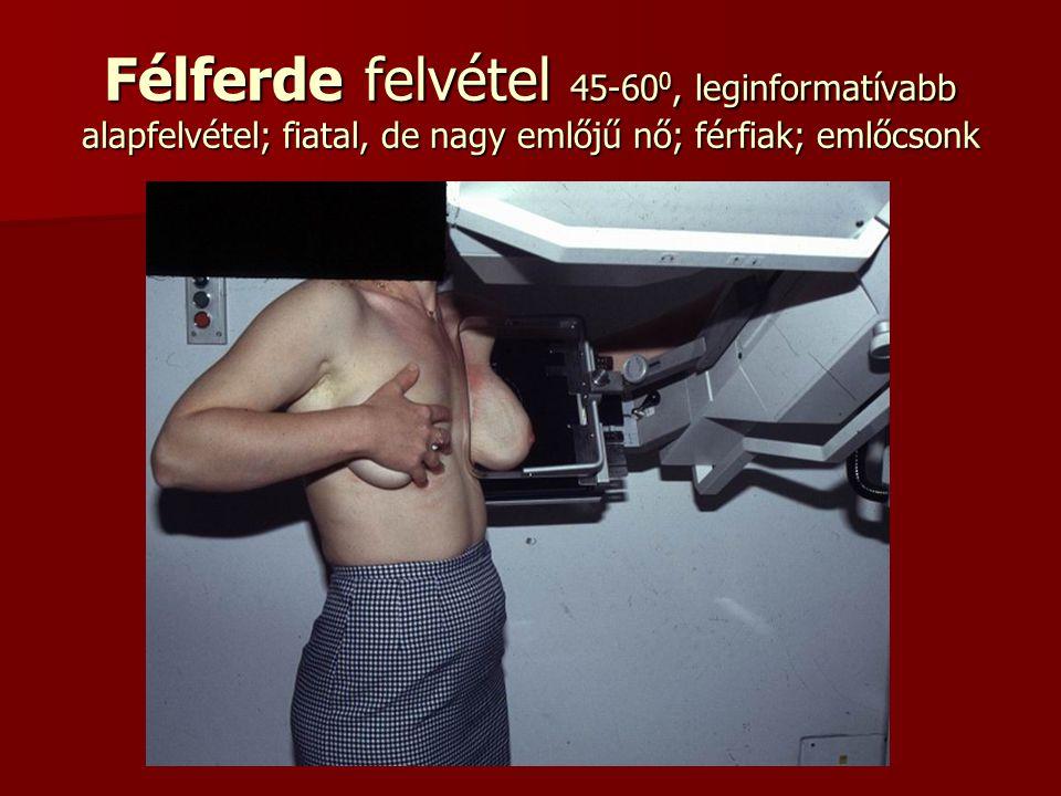 Félferde felvétel 45-60 0, leginformatívabb alapfelvétel; fiatal, de nagy emlőjű nő; férfiak; emlőcsonk