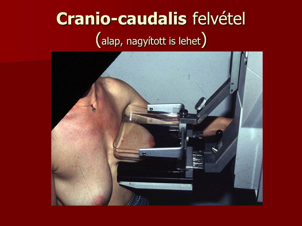 Cranio-caudalis felvétel ( alap, nagyított is lehet )