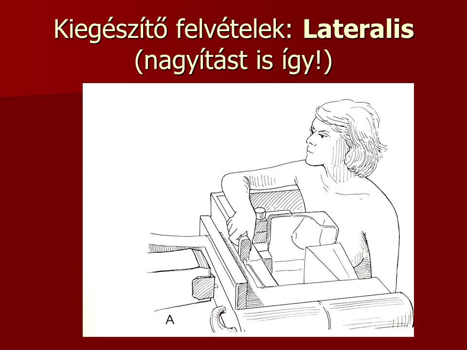 Kiegészítő felvételek: Lateralis (nagyítást is így!)