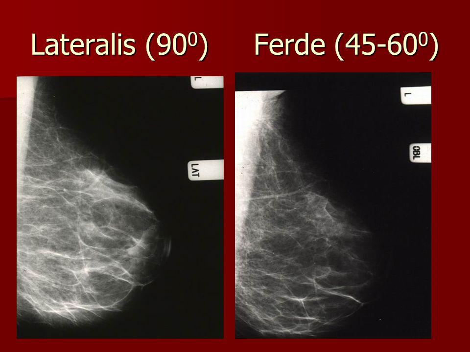 Lateralis (90 0 ) Ferde (45-60 0 )