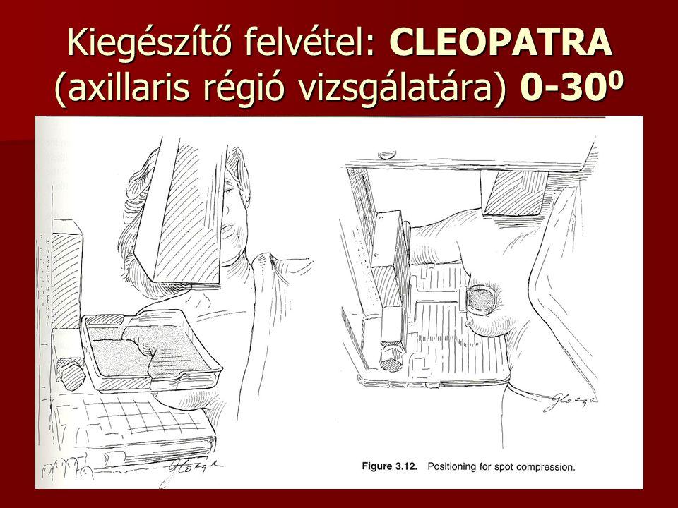 Kiegészítő felvétel: CLEOPATRA (axillaris régió vizsgálatára) 0-30 0