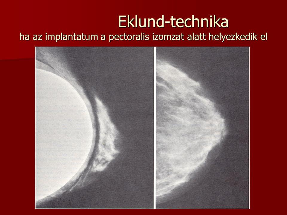 Eklund-technika ha az implantatum a pectoralis izomzat alatt helyezkedik el Eklund-technika ha az implantatum a pectoralis izomzat alatt helyezkedik e