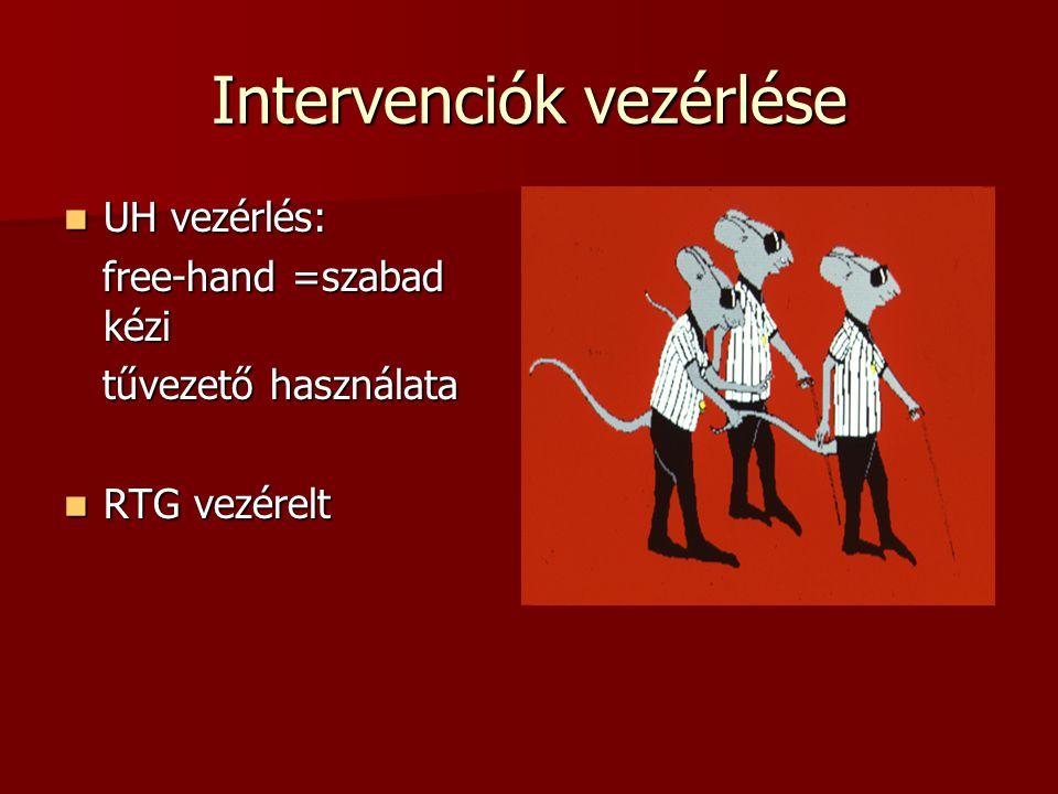 Intervenciók vezérlése  UH vezérlés: free-hand =szabad kézi free-hand =szabad kézi tűvezető használata tűvezető használata  RTG vezérelt