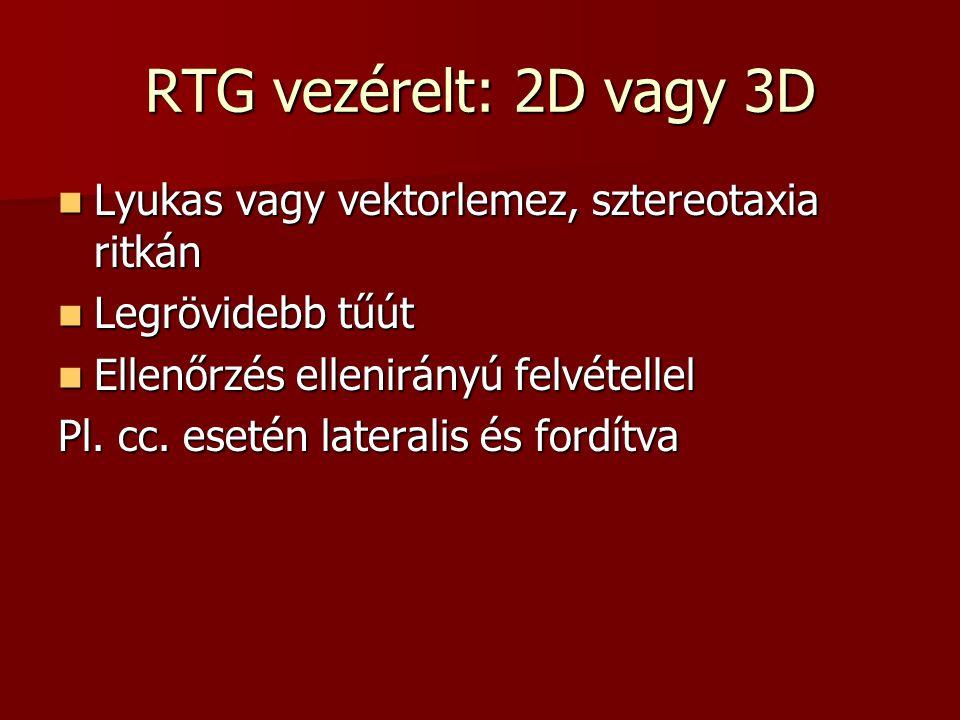 RTG vezérelt: 2D vagy 3D  Lyukas vagy vektorlemez, sztereotaxia ritkán  Legrövidebb tűút  Ellenőrzés ellenirányú felvétellel Pl. cc. esetén lateral