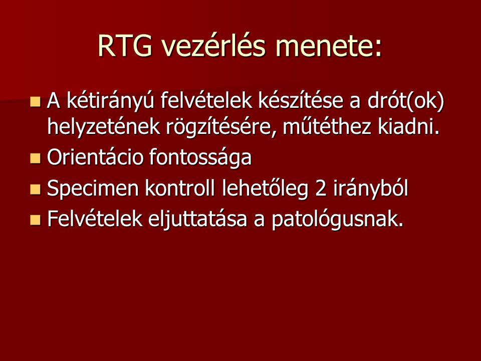 RTG vezérlés menete:  A kétirányú felvételek készítése a drót(ok) helyzetének rögzítésére, műtéthez kiadni.  Orientácio fontossága  Specimen kontro
